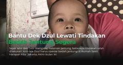 Bantu Operasi Dek Dzul di Jakarta Bulan Oktober Ini
